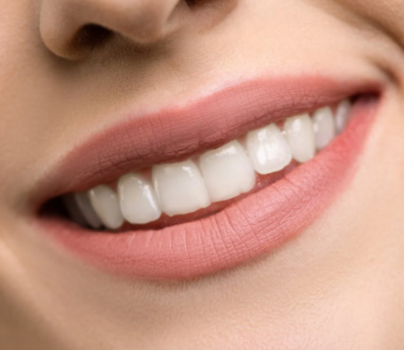 Teeth Whitening Adelaide Experts Warn About the Possible Risks of Home Teeth Whitening Kits